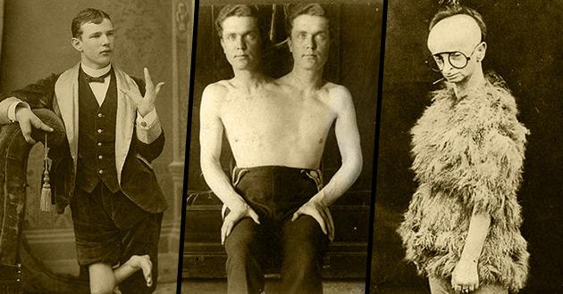 16 przerażających zdjęć cyrkowców z dawnych czasów